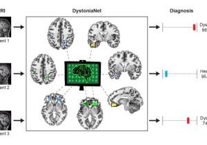 Δυστονία, διάγνωση, τεχνητή νοημοσύνη